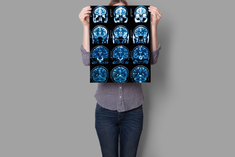 Hands hold MRI Scan of head, neck and brain of multiple sclerosis patient